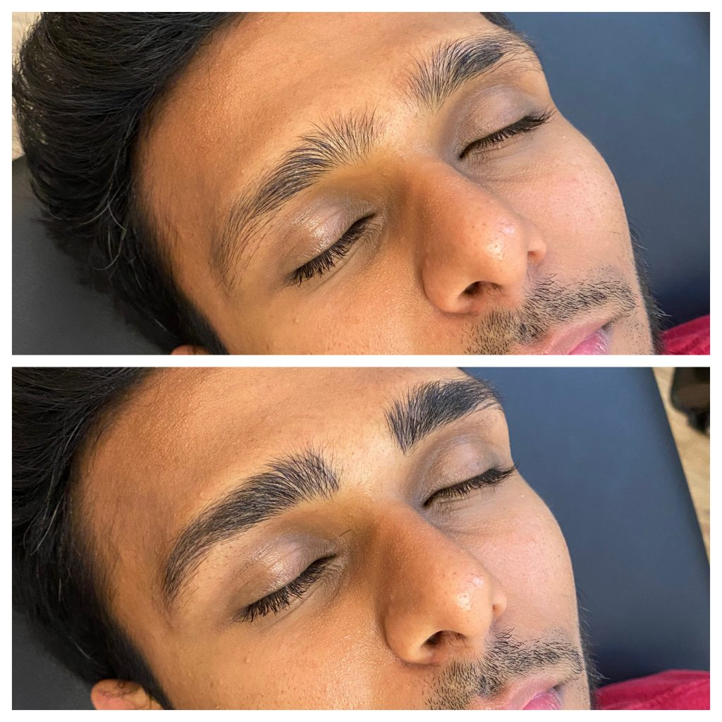 Guy Microblading Before and After